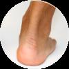 Achilles Tendon Treatment NYC   Best Podiatrist in New York