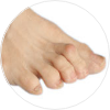 Hammer Toes Treatment NYC   Best Podiatrist in New York