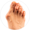 Bunions and Corns Treatment NYC   Best Podiatrist in New York