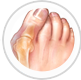 Podiatrist NYC   Hammer Toes Surgery