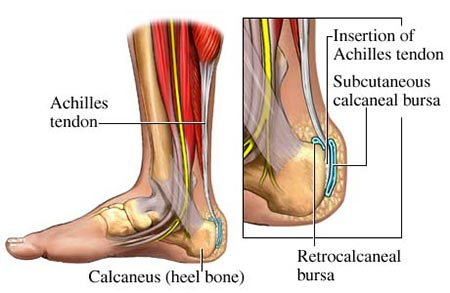 Achilles Tendon Rupture Surgery NYC
