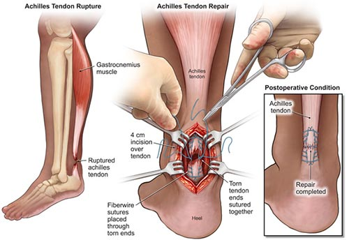 Achilles Tendon Surgery NYC