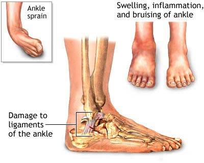 Ankle Sprain Specialist NYC