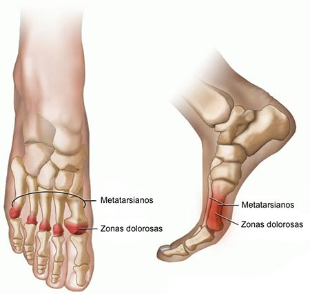 Ball of Foot Pain (Metatarsalgia)