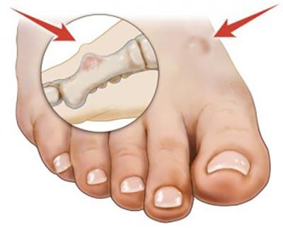 Benign and Malignant Foot Tumors