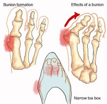 Bunions and Corns Specialist NYC