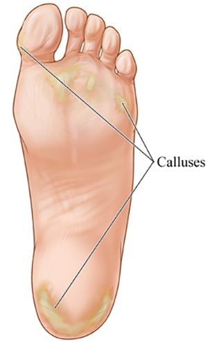 Calluses Foot Doctor Specialist NYC