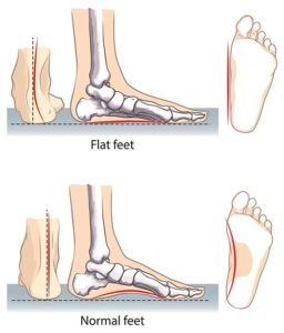 Flat Feet Correction Specialist · 2020 Top Foot Doctor & Podiatrist in NYC