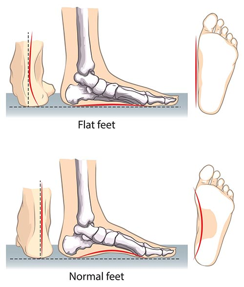 Flat Feet Correction Specialist NYC