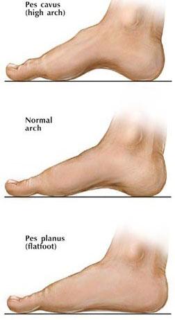 Flat Foot Surgery NYC