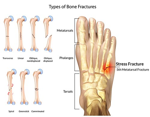 Foot Fracture Doctor NYC