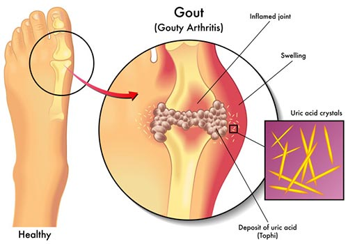 Gout Treatment Specialist NYC
