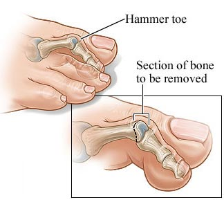 Hammer Toe Surgery NYC | Midtown Manhattan NY