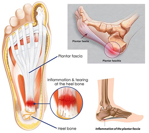 Heel Pain Treatment Specialist NYC