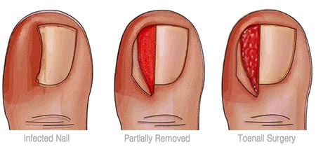 Ingrown Toenail Surgery NYC