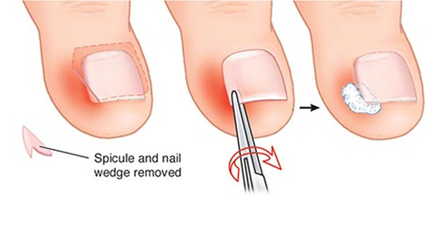 Ingrown Toenails Specialist NYC