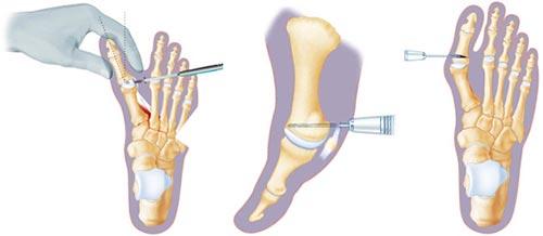 Minimally Invasive Foot Surgery NYC