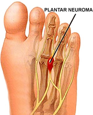 Neuromas, Nerve Tumors Specialist · 2016 Top Foot Doctor, Podiatrist ...