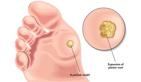 Plantar Warts Specialist NYC
