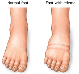 Swollen Feet Specialist NYC