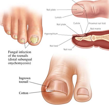 Toenail Fungus Treatment NYC