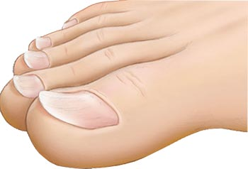 Toenail Problems Foot Doctor NYC