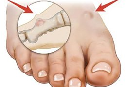 Foot Tumors Treatment NYC | Best Podiatrist in New York