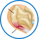 Podiatrist NYC   Plantar Fasciitis Surgery Midtown and Upper East Side