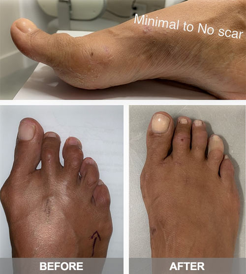 bunion surgery in nyc | before after