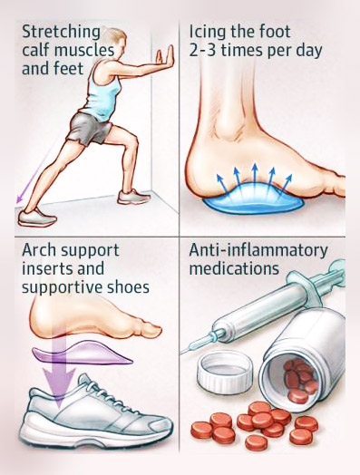 Alternative Treatment for Plantar Fasciitis