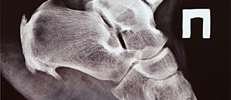 Heel or Toe Bone Spurs