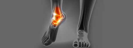 Ankle pain condition