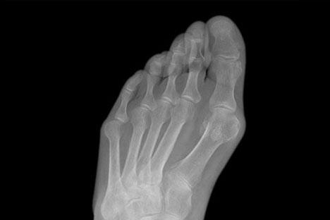 big toe joint