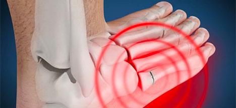 Broken Foot - Fractured Foot Treatment